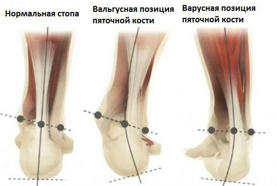 Нормальное и патологическое развитие положения ступней