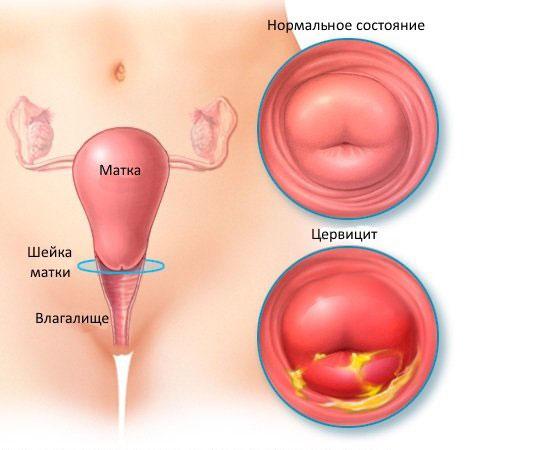 Нормальное состояние шейки матки и воспаление