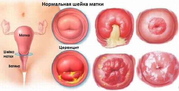 Нормальна шейка матки и с цервицитом