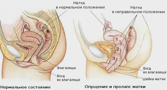 Положение матки относительно органов малого таза