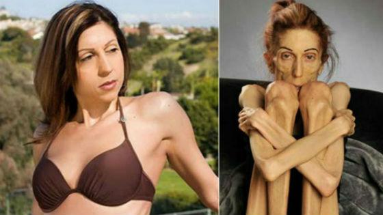 Женщина с нормальной массой и дефицитом массы тела