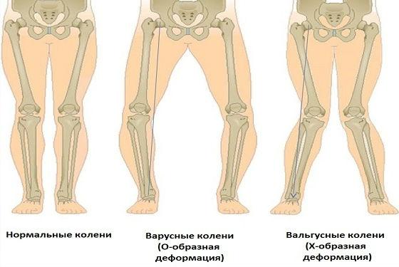 Положение коленей при деформации ступней