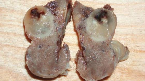 Вырезанная щитовидка с опухолью