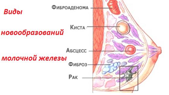 Виды уплотнений и новообразований женской груди