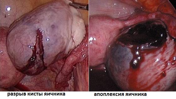 Разрывы кистозных полостей и апоплексия яичника как возможные осложнения