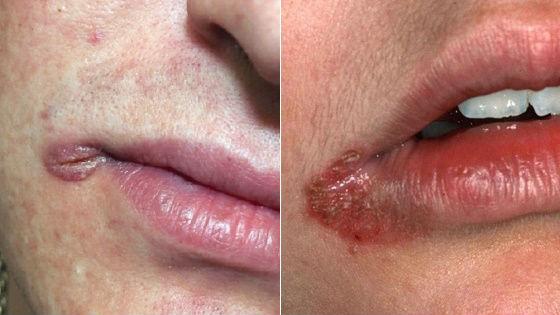 Осложненные инфекцией трещинки