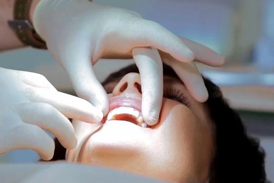 Перед осветлением зубной эмали обязательно проводится осмотр стоматологом