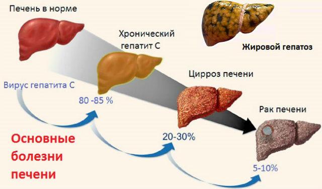 Некоторые виды печеночных болезней