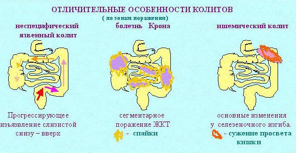 Виды и формы воспаления кишечника