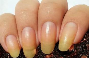 Как отбелить ногти в домашних условиях: покупные средства, народные рецепты