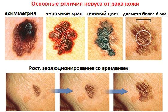 Отличия невусов от рака кожи