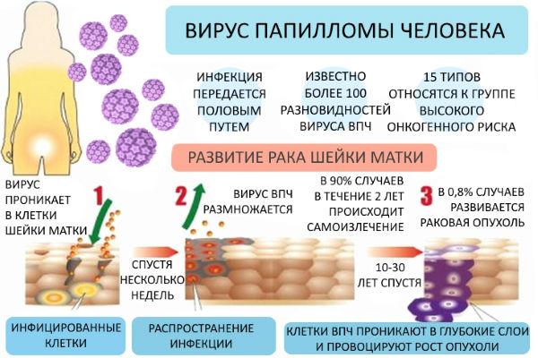 Как развивается папилломавирус в тканях человека