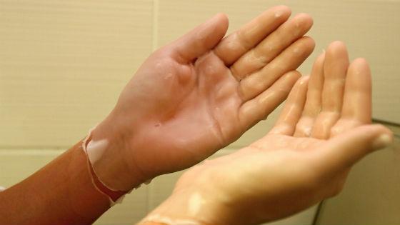 Застывший на руках парафин называют парафиновыми перчатками