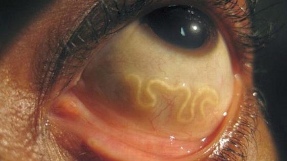 Гельминты в глазном яблоке способны вызвать слепоту