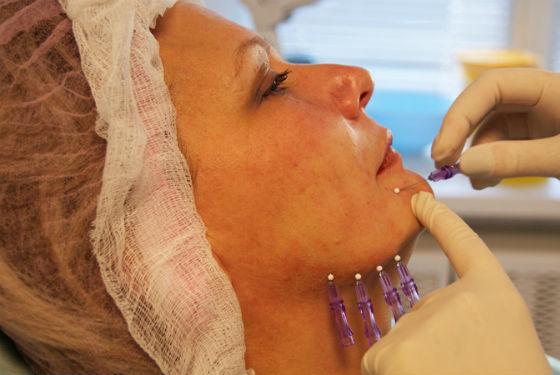 Мезонити для подтяжки кожи