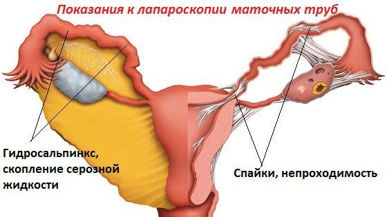 Показания к лапароскопическому обследованию и проведению операции