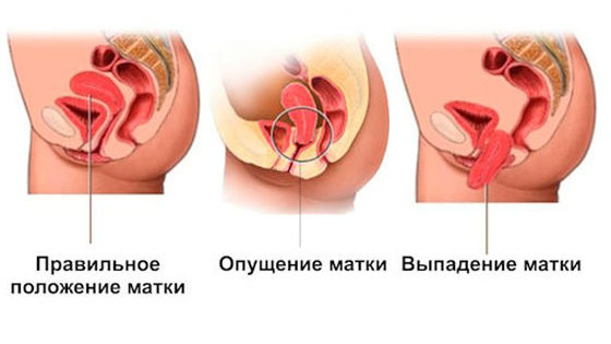 Нормальная матка, опущение и выпадение органа