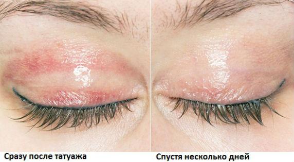 Как происходит заживление перманентного макияжа глаз