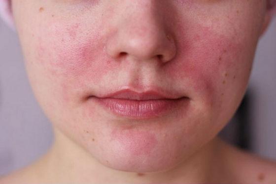 Применять гепарин для лица следует с осторожностью во избежание раздражений