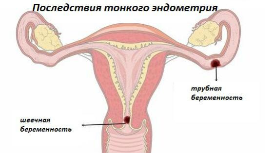 Недостаточно развитая слизистая оболочка матки ведет к внематочной беременности