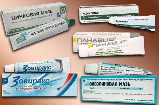 Противовирусные препараты для лечения герпетической инфекции