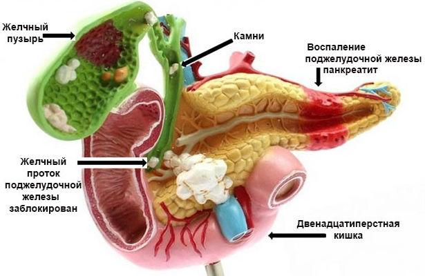 Причины воспаления поджелудочной железы