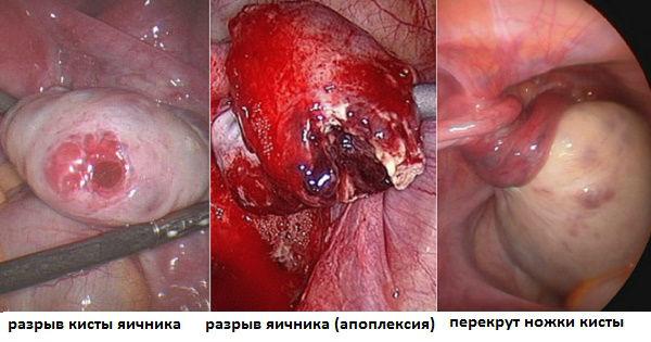 Виды изменений структуры яичников, из-за которых возникают боли слева