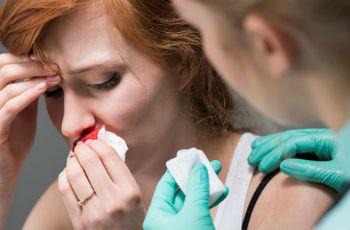 Кровотечения из носа: возможные причины у взрослых и детей, как остановить
