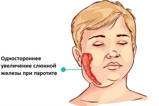 Воспаление и увеличение слюнных желез при паротите