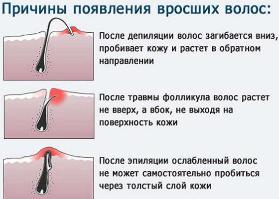 Причины врастания волосков после сахарной эпиляции