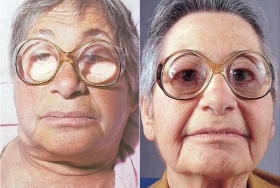 Сильные отеки лица как признак гипотиреоза