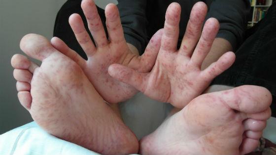 Сыпь на ладонях и стопах при энтеровирусных заболеваниях