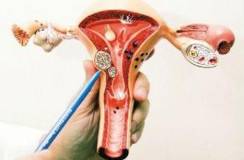 Миома давит на мочевой пузырь у женщин: причины и лечение