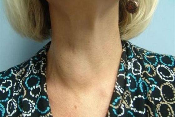 Визуальное увеличение щитовидки