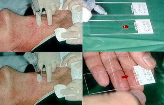 Биопсия для уточнения диагноза