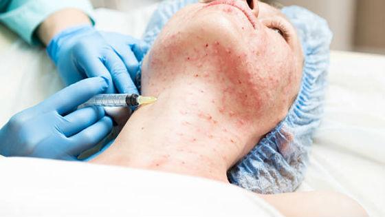 Введение гиалуроновой кислоты в глубокие слои кожи