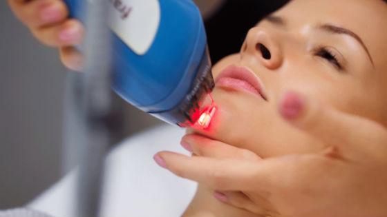 Проведение процедур по омолаживанию кожи лазером