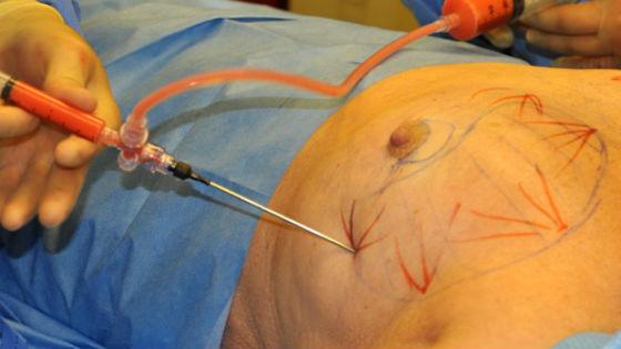 Для равномерного распределения жировой ткани на груди отмечают определенные участки