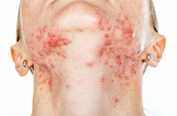 Прыщи на шее у женщин: причины появления, лечение, профилактика