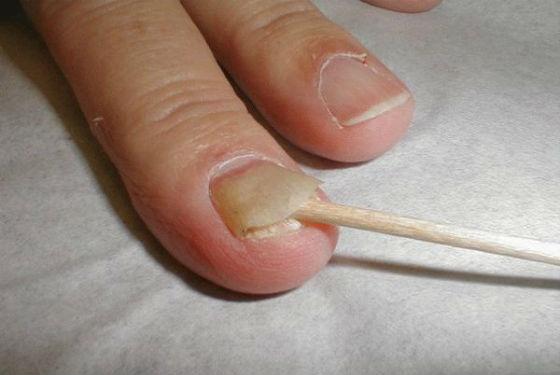 Псориатическое поражение ногтевой платины