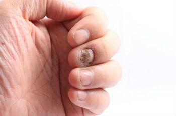 Сравнение грибка и псориаза