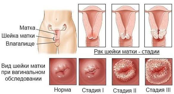 Как расположены раковые клетки при 1-4 стадиях