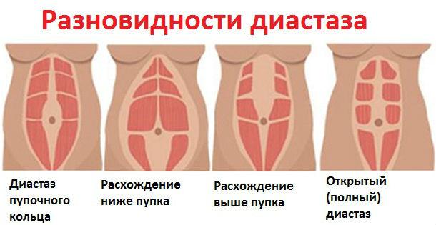 Виды расхождения мышц живота