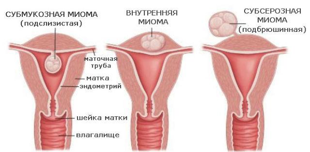 сбой менструального цикла из за диеты