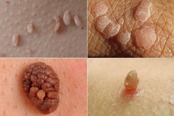 Разные виды папилломатозных образований на коже