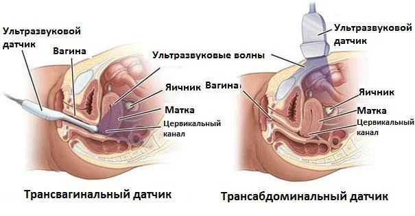 Виды УЗ-исследований органов малого таза