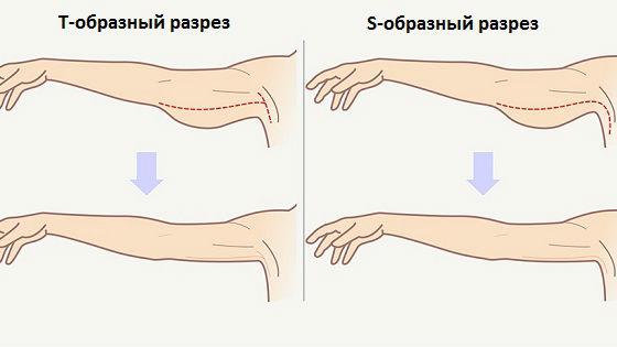 Виды разрезов при пластике верхней части рук