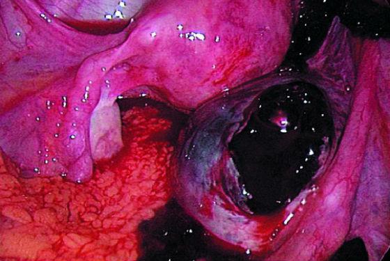 Апоплексия яичника, разрыв кистозного образования