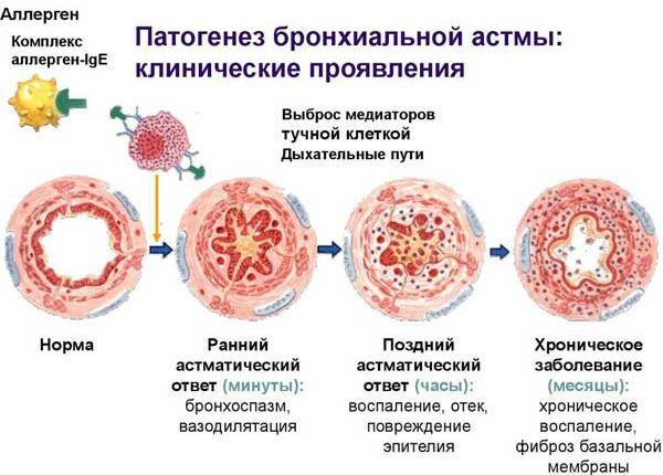 Процесс развития спазма бронхов при приступе