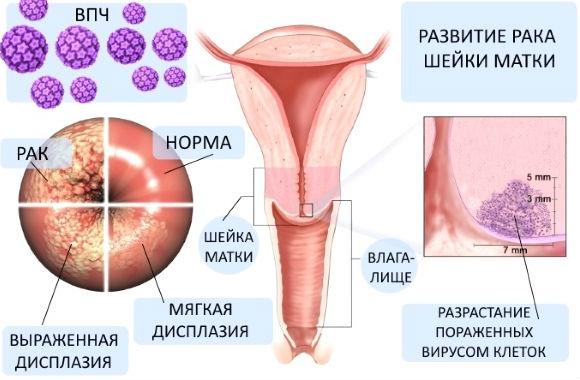 Как развивается раковая опухоль шейки матки